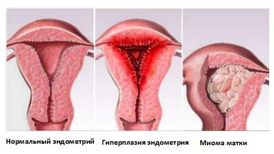 Секс при аденомиозе в пременопаузе
