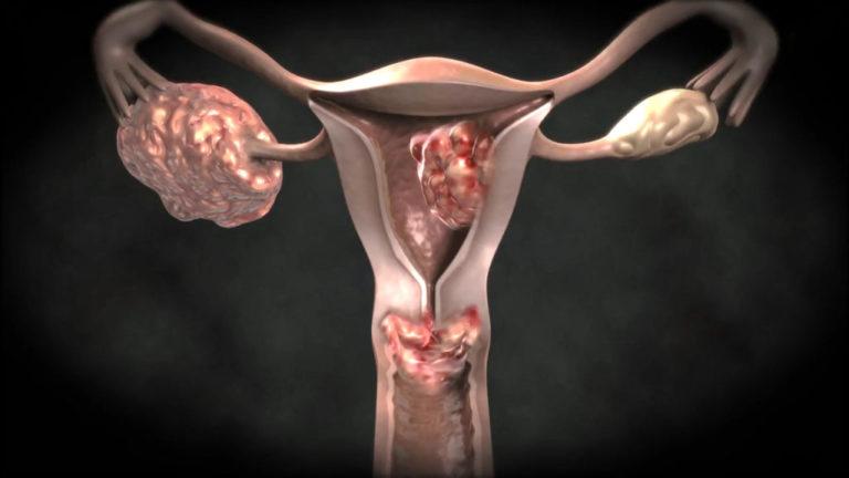 Чем опасна киста на яичнике у беременной женщины 70