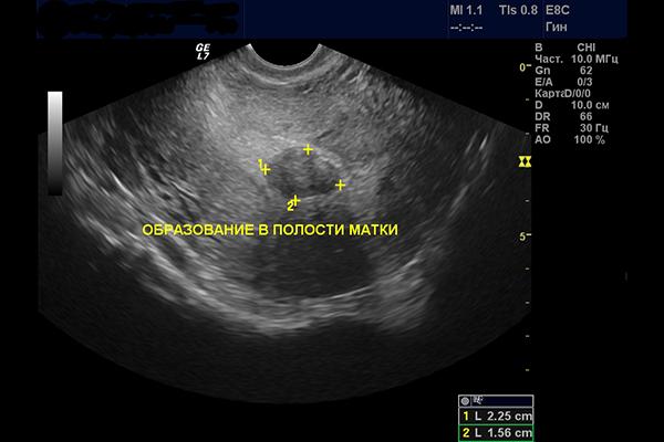 узи в гинекологии миома матки