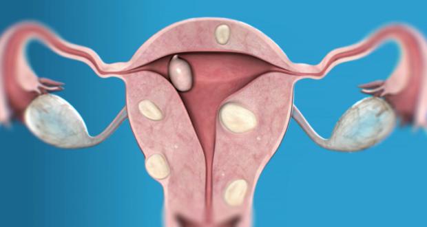 Узловатая миома матки лечение