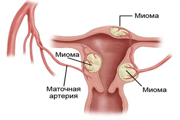 Фиброзная миома