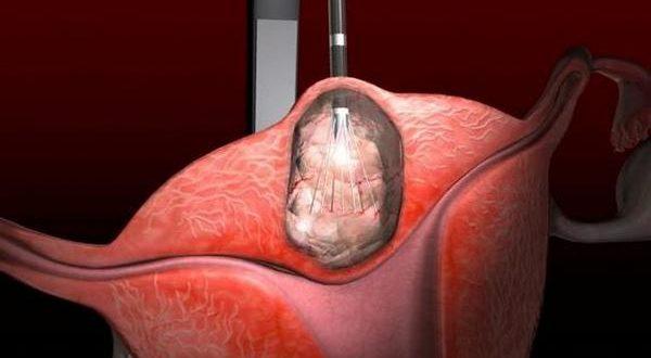 Интерстициально субсерозная миома матки: что это такое, как лечить субмукозную форму заболевания у женщин