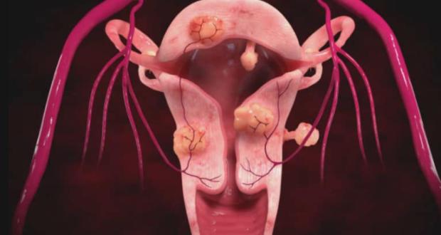Боровая матка при миоме отзывы врачей и пациенток