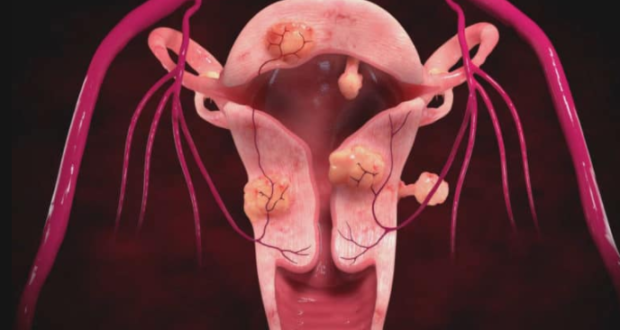 Боровая матка помогает ли при кисте яичника