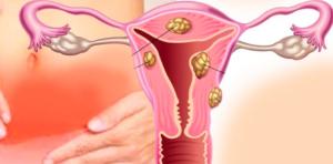 Лечение миомы матки гомеопатией / Центр Гомеопатии / Статьи