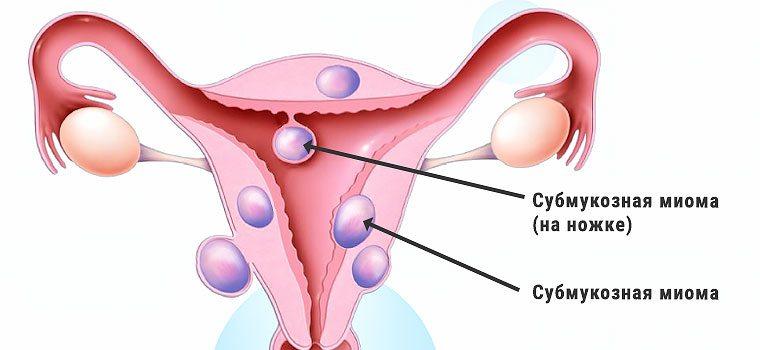 Миома матки лечение при климаксе без операции отзывы