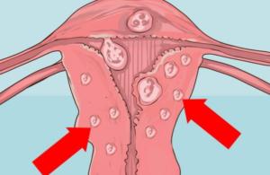 Лапароскопия как метод удаления кист яичников основная информация об операции
