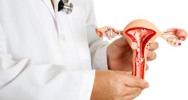 Можно ли заниматься фитнесом при миоме матки — Мой гинеколог