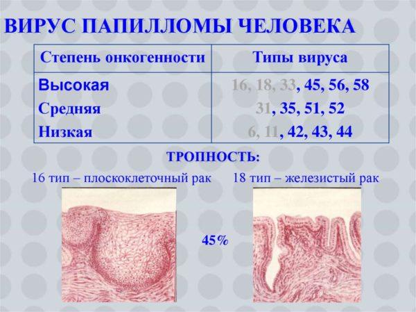 Папилломавирус - Лечение за рубежом