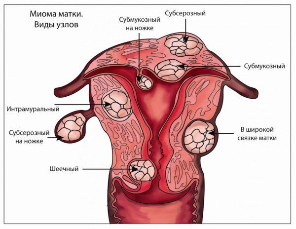 Удаление миоматозного узла при гистероскопии 27