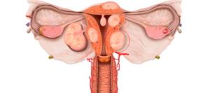 Удаление миоматозного узла при гистероскопии 26