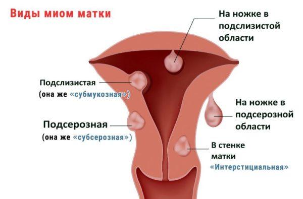 Лечение миомы гомеопатией отзывы