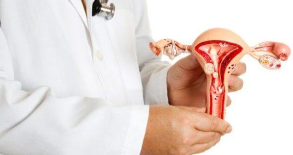 Эндометриоз шейки матки причины симптомы лечение последствия