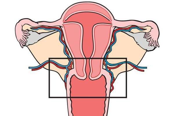 Миома матки при климаксе причины симптомы лечение без операции