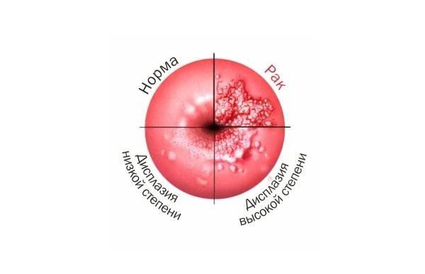 Удаление дисплазии шейки матки 9