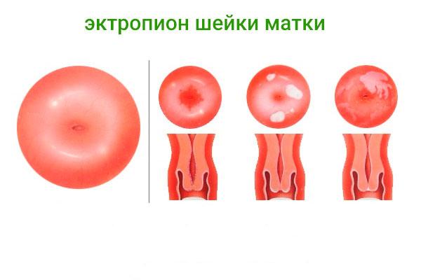 Проявление и лечение эктропиона шейки матки