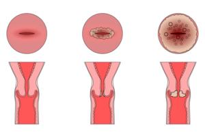 Эрозия шейки матки приводит к раку