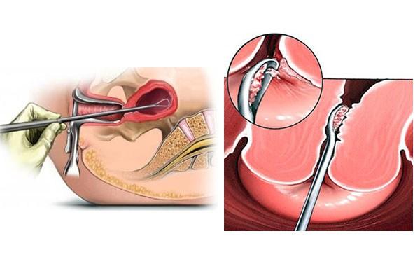 гинекология удаление полипов видео
