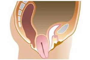 Опущение стенок матки: причины, симптомы, методы терапии