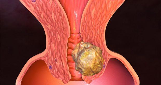 Болезни матки гинекология - «Московский Доктор»