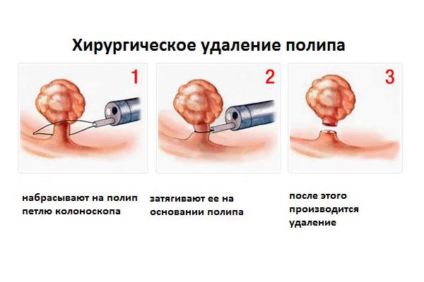 гинекология бужирование цервикального канала