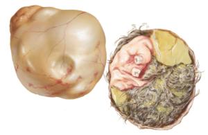 Как выходит киста яичника - Всё о гинекологии
