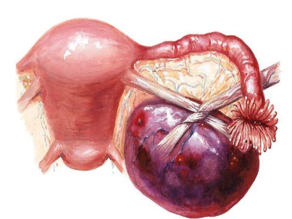 меню после операции по гинекологии