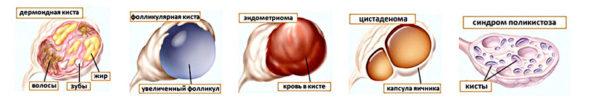 Калина при кисте яичника отзывы
