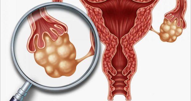 Кандидоз влагалища - Болезни гинекологии