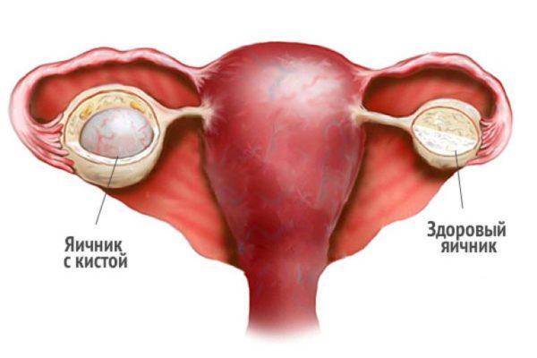 может ли при кисте яичника болеть живот