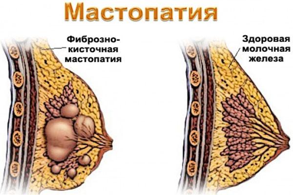 Фиброзно кистозная мастопатия молочных желез народные средства 31