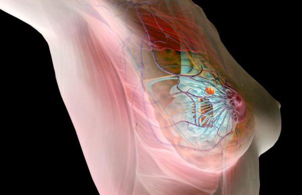 Как дюфастон влияет на мастопатию thumbnail
