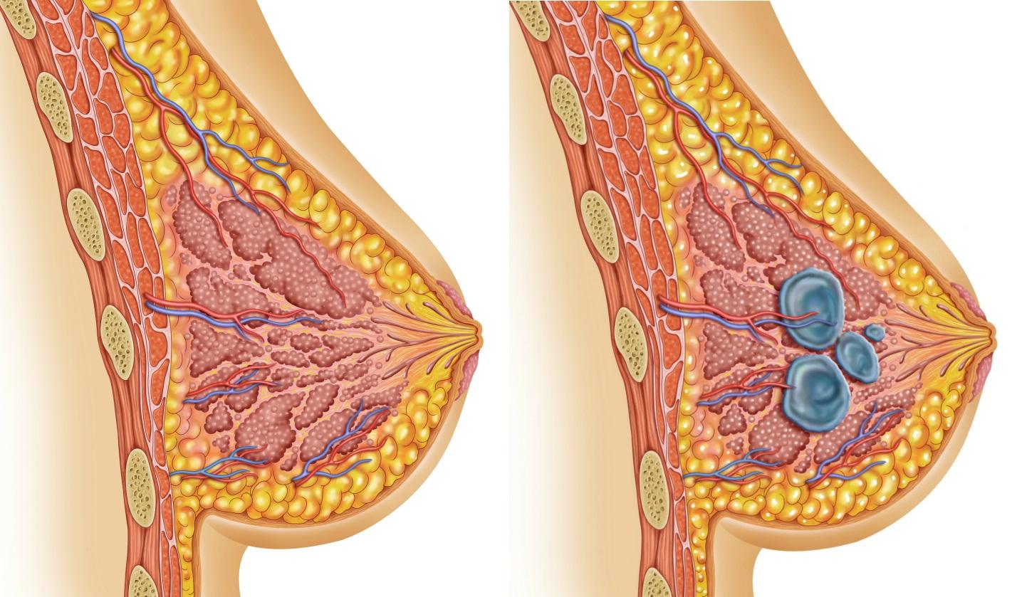 Гормональный сбой у женщин симптомы и лечение народными средствами
