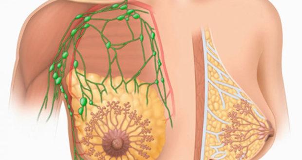 Фиброаденома молочной железы: что это такое, симптомы, причины, фото, лечение