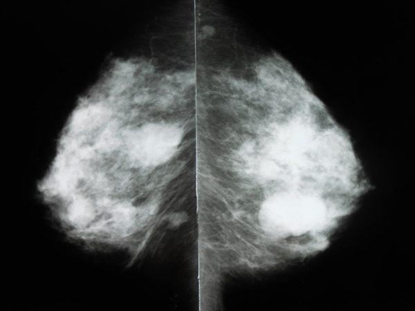 Фиброаденома с нечеткими контурами