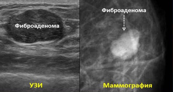 Фиброаденома молочной железы операция сколько по времени 5