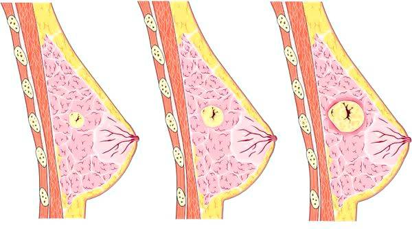 Фиброаденома молочной железы операция сколько по времени 4