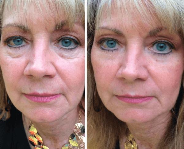 возрастные крема от морщин под глазами